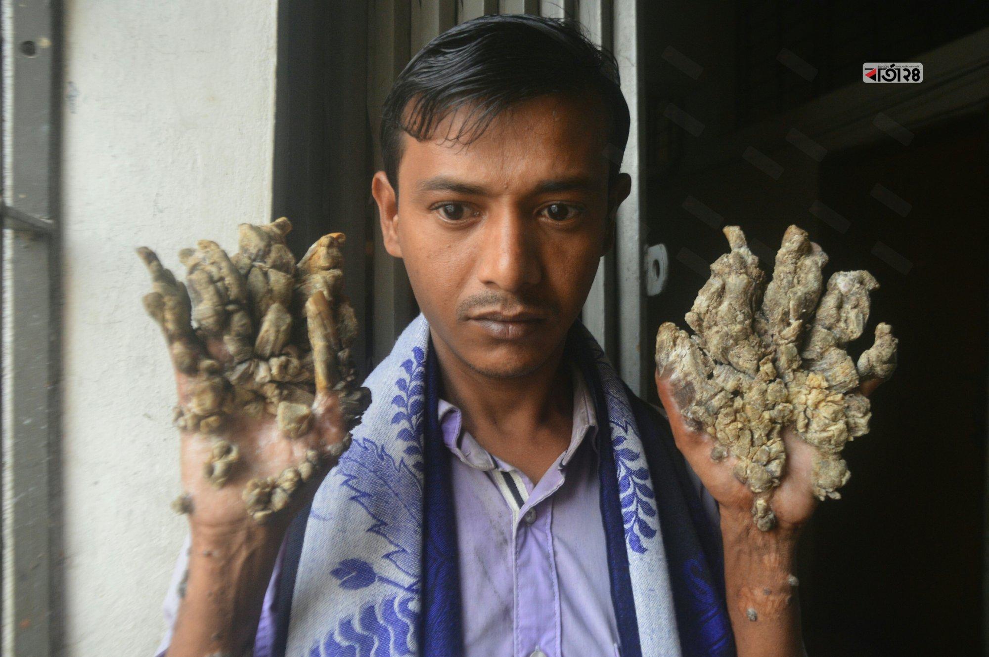 বৃক্ষ-মানব হিসেবে পরিচিত মোহাম্মদ আবুল বাজানদার। ঢাকা মেডিকেল কলেজ থেকে ছবিটি তুলেছেন সুমন শেখ।